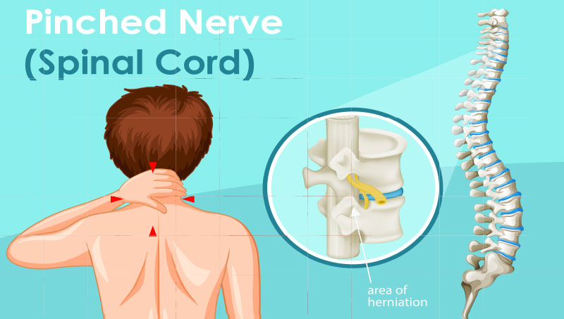 Pinched nerve pain in spinal cord