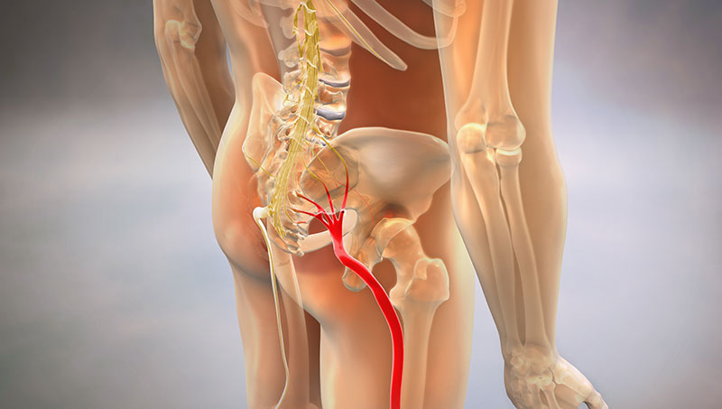 image showing loaction of sciatic nerve